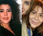 Alejandra Guzmán Se Ha Desfigurado La Cara